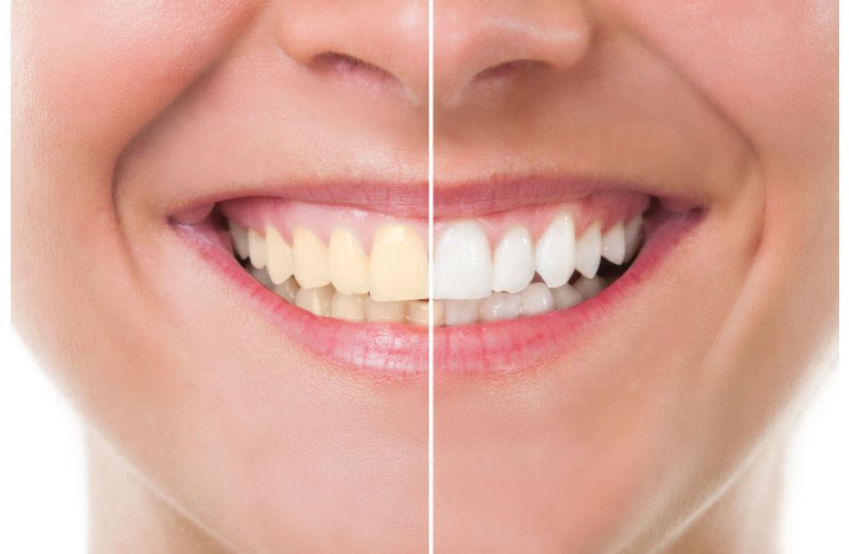19 2021 637581549176405475 640 - كيف تتخلص من الأسنان الصفراء بطرق بسيطة في المنزل؟